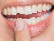 woman pointing to chipped tooth