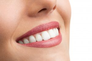 Close up of perfect female teeth on white background